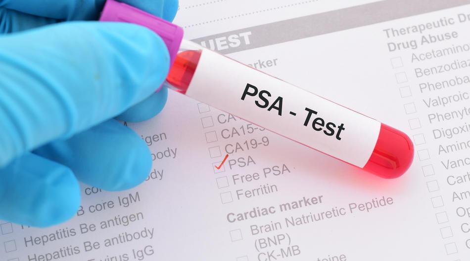 Simptome psa antigen prostatic mic
